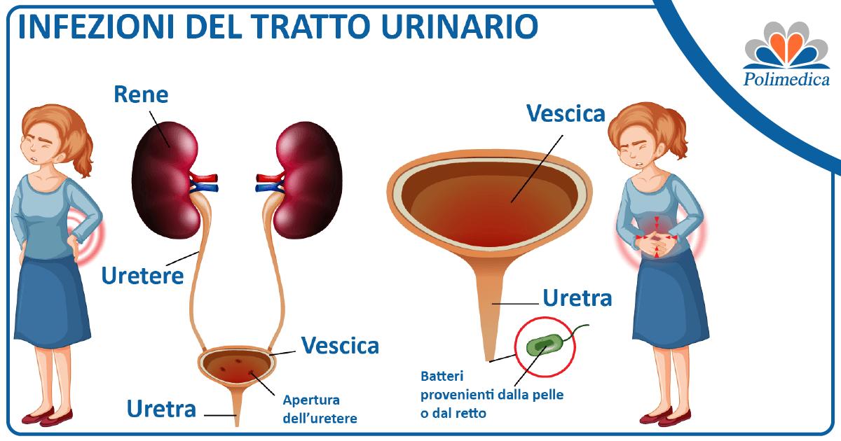 Come avvengono le infezioni del tratto urinario