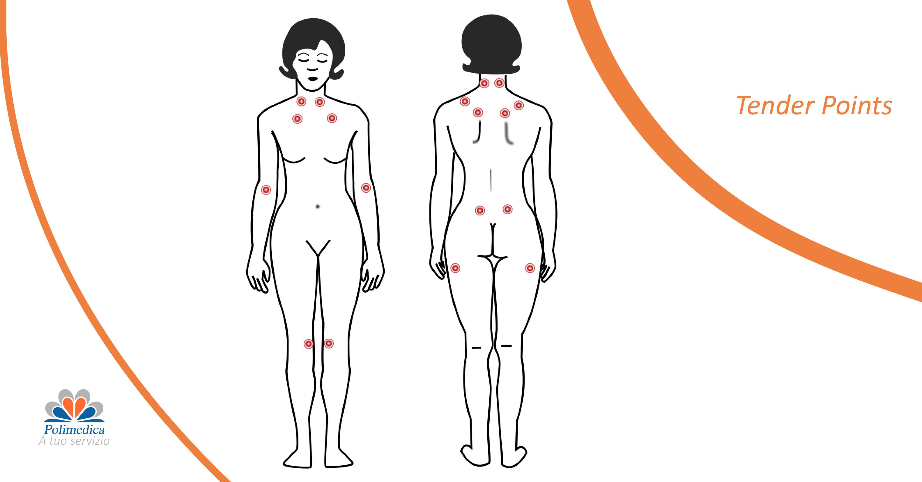 fibromialgia - tender points