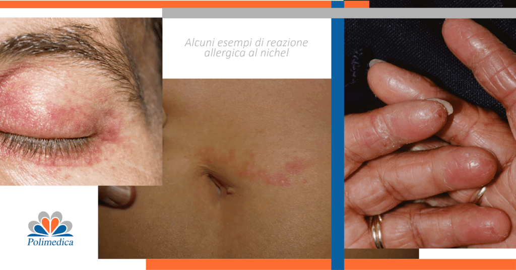 Immagini di allergia al nichel a pancia, mani e occhi