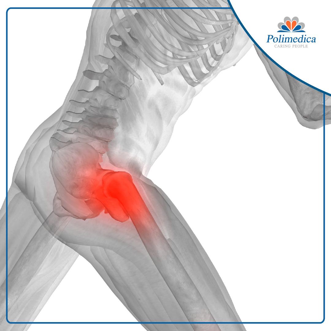 Rappresentazione grafica con logo di Polimedica Melfi, dell'anatomia di una gamba con evidenziato il femore. Foto di accompagnamento all'articolo Frattura sottocapitata del femore, la riabilitazione di un giovane paziente.