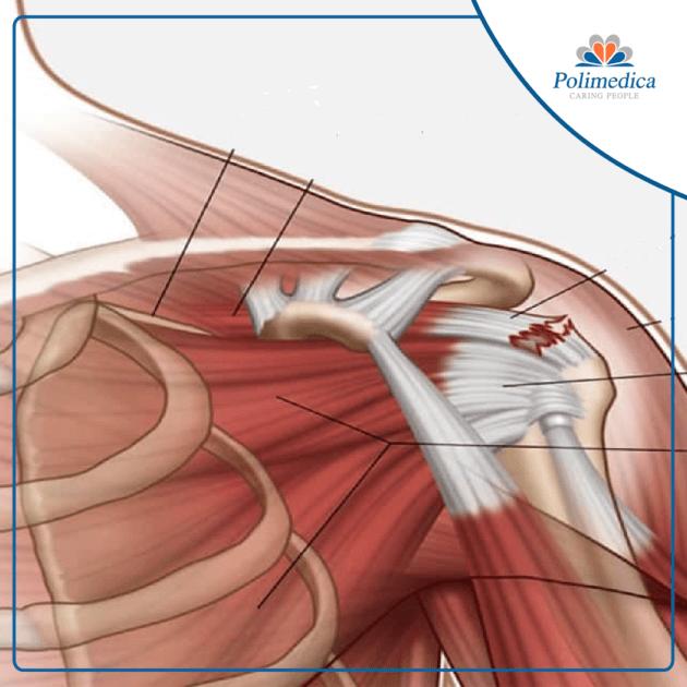 Rappresentazione grafica con logo di Polimedica Melfi, dell'anatomia di una spalla. Foto di accompagnamento all'articolo Riabilitazione della cuffia dei rotatori.