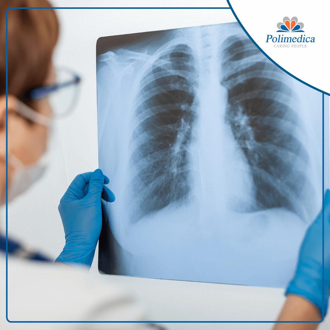 Foto, con logo di Polimedica Melfi, di un medico che esamina una radiografia ai polmoni. Immagine utilizzata per il post Offerta di lavoro per specialista in tisiologia.